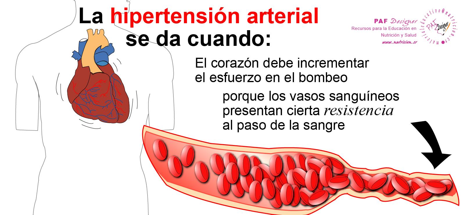 nutricion.cr - Hipertensión Arterial